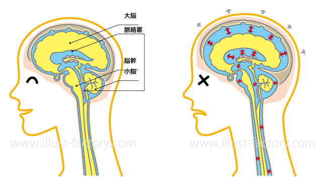 脳の断面★図解イラスト★