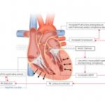 心臓の医療系図解
