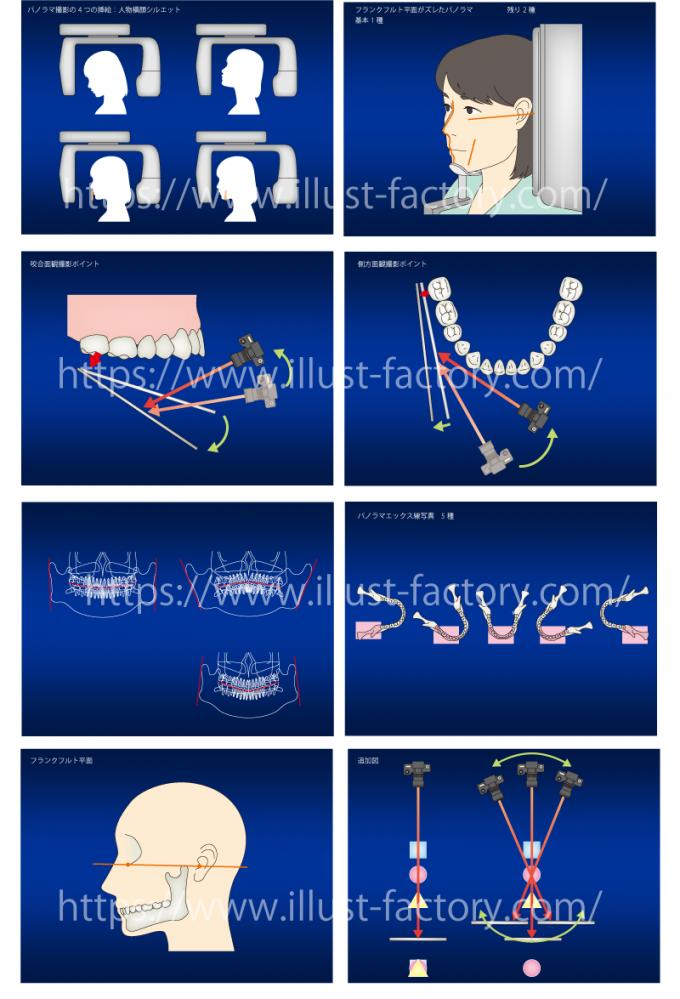 歯科医院様 歯の施術医療系イラスト 堅めの線画タッチ H144