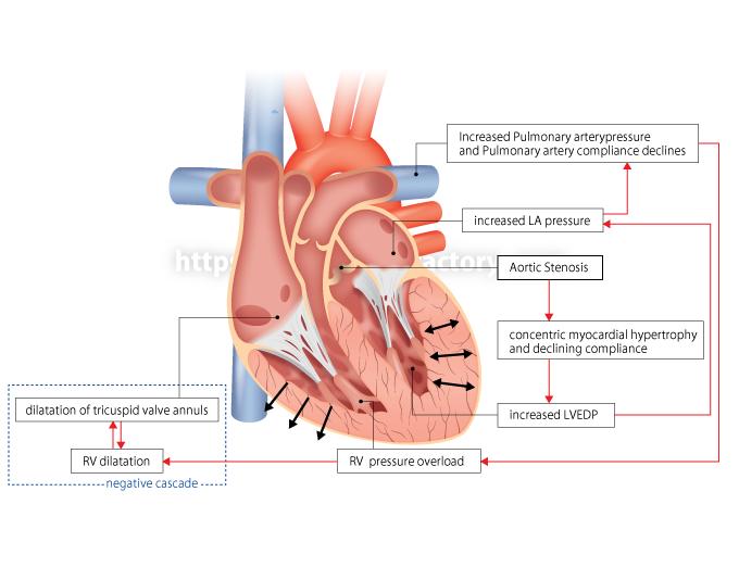 H95 心臓の医療系図解