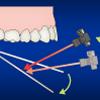 歯科医院様 歯の施術医療系イラスト 堅めの線画タッチ H144-1