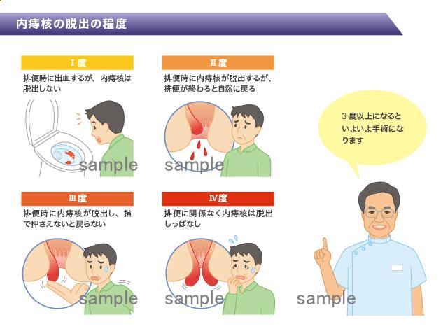 医療系イラストと医師の似顔絵 H166-1