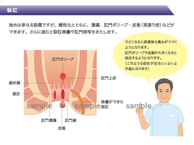 医療系イラストと医師の似顔絵 H166-3