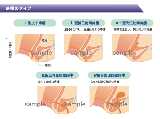 医療系イラストと医師の似顔絵 H166-4